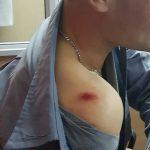 Detienen a un joven que agredió y lesionó a dos policías